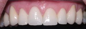 Teeth after crowns
