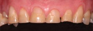 Teeth before crowns